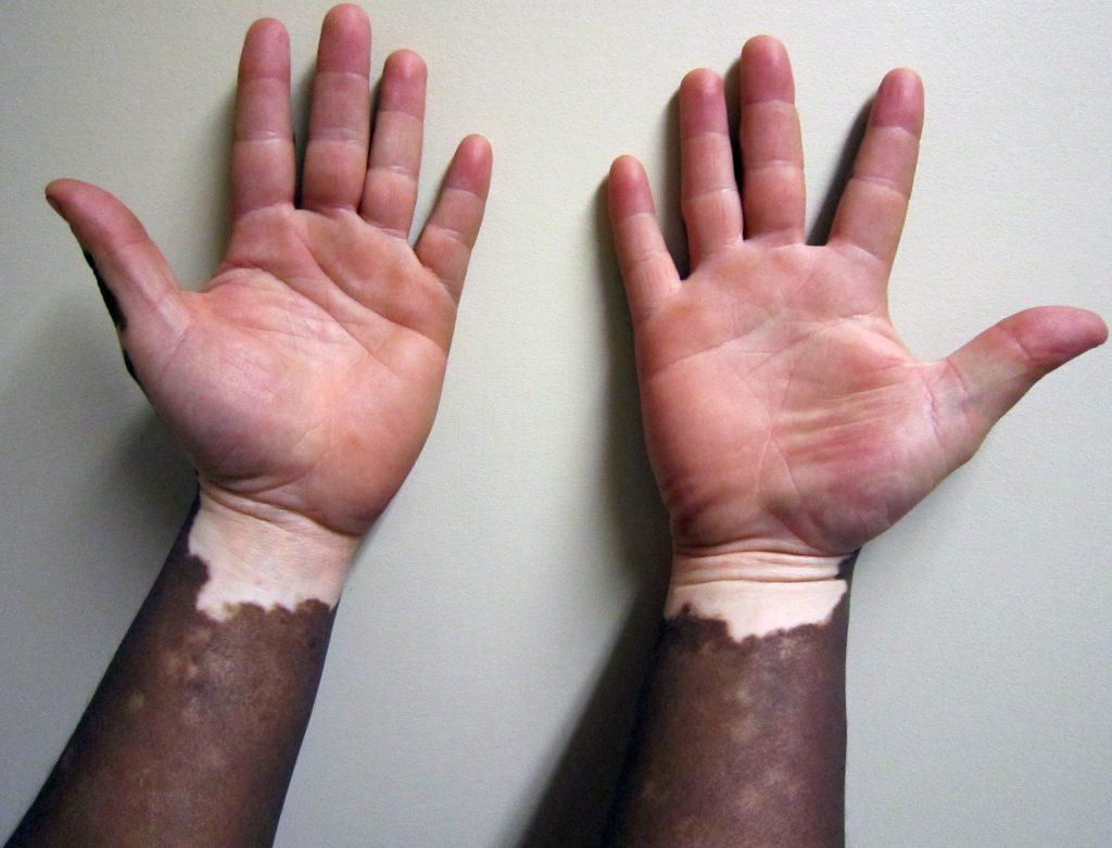 Quais são as causas do vitiligo?