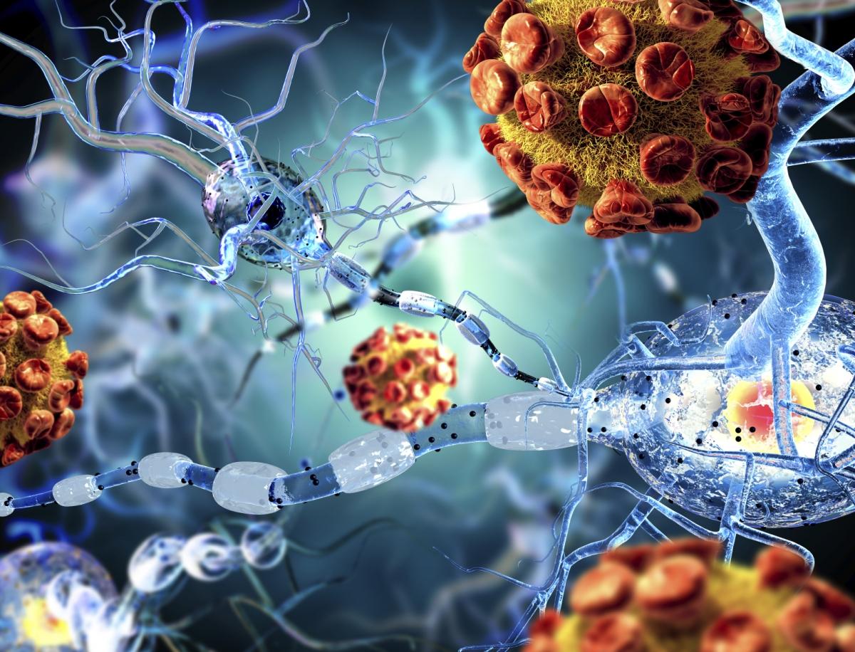 Esclerose Múltipla e Doença de Parkinson na Nova Medicina Germânica