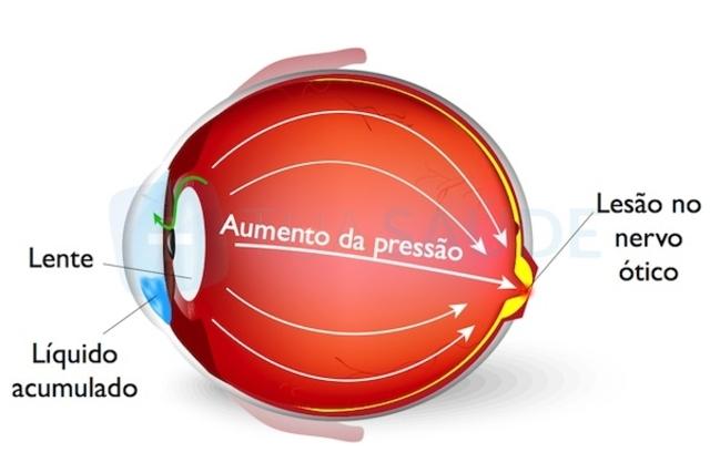 Como ajudar uma pessoa com Glaucoma