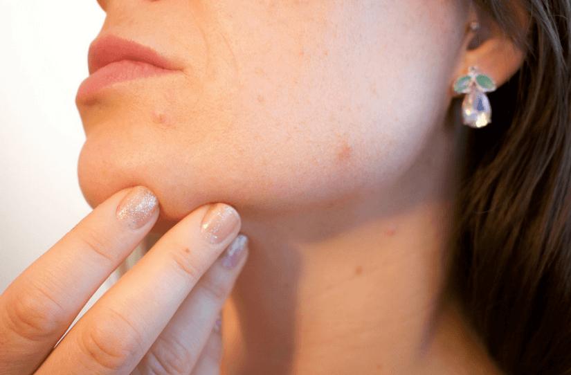 O que causa problemas de pele segundo a Nova Medicina Germânica