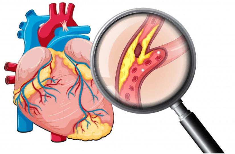 Descubra o que o Colesterol diz sobre seu corpo.