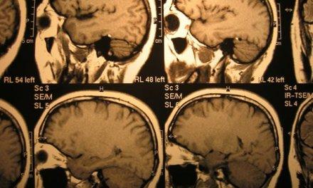 Como surge o câncer: visão da Germânica Heilkunde