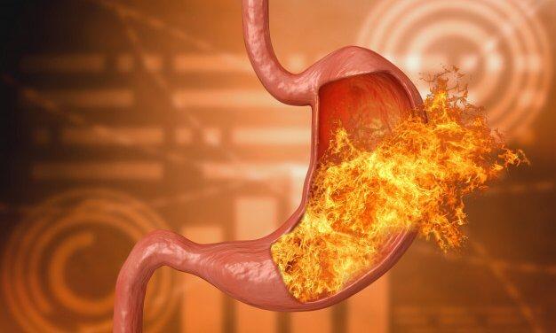 O que é refluxo gástrico para a Germânica Heilkunde?