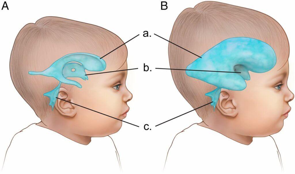 Hidrocefalia segundo a Medicina Germânica Heilkunde