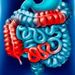 Intestino Delgado e Doença de Crohn pela Medicina Germânica Heilkunde