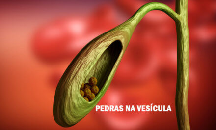Pedra na vesícula (cálculo biliar) pela Medicina Germânica Heilkunde