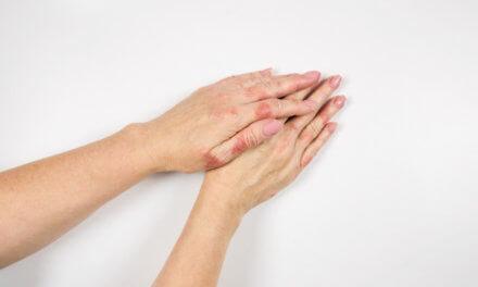 Eczema das mãos segundo a Medicina Germânica Heilkunde