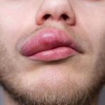 O que pode causar angioedema? Pela Medicina Germânica Heilkunde