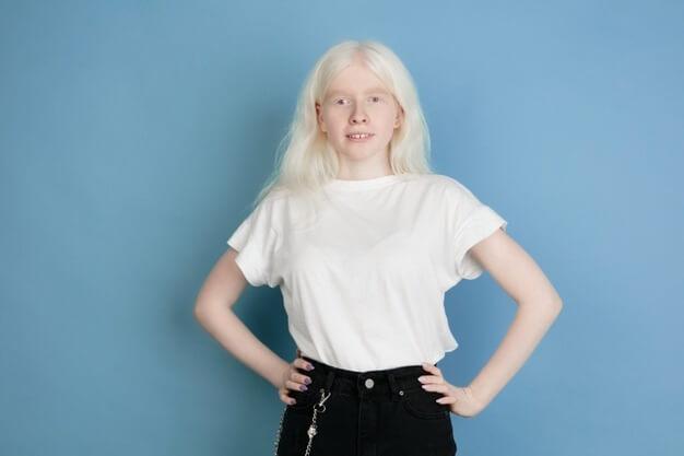 Albinismo pela Medicina Germânica Heilkunde